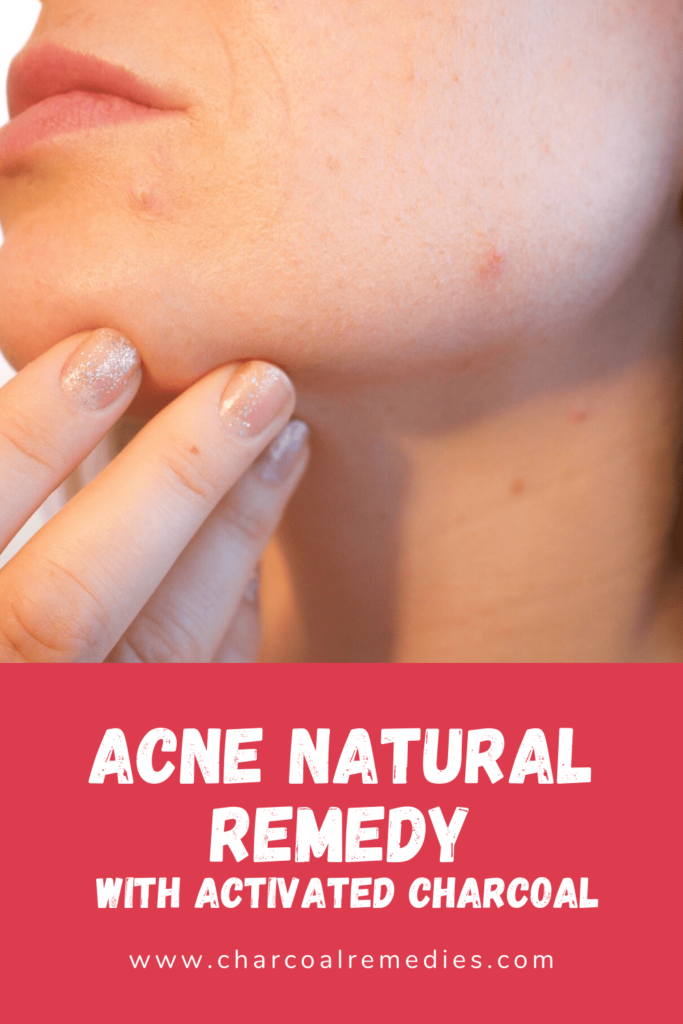 Acne Natural Remedy With Activated Charcoal