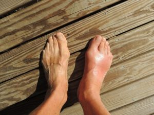 gout feet