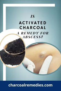 Activated Charcoal Remedy for Abscess