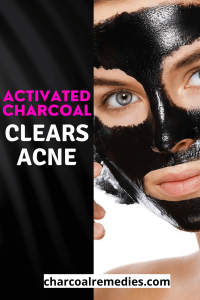 Acne Treatment With Activated Charcoal