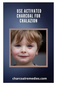 activated charcoal for chalazion treatment 2