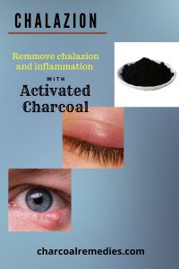 activated charcoal for chalazion treatment 3
