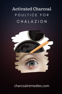 activated charcoal for chalazion treatment 4