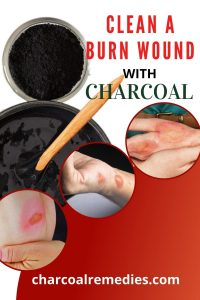 burn treatment with activated charcoal 2