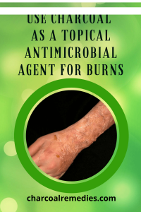 burn treatment with activated charcoal 4